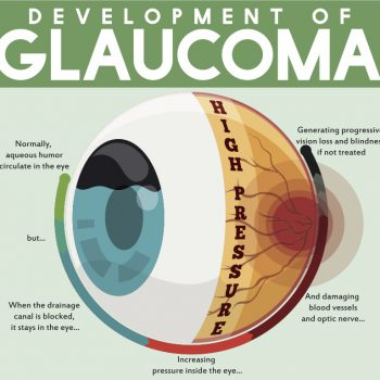 The development of Glaucoma