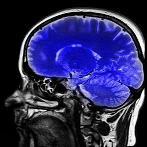 Xray of a person's head witht he brain colored blue.