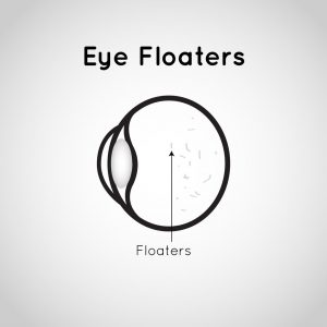 illustration of an eye and floaters