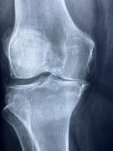 xray of a knee