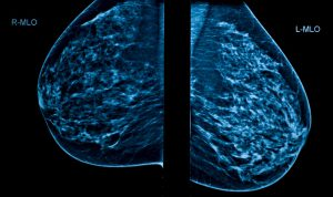3D of breast tissue