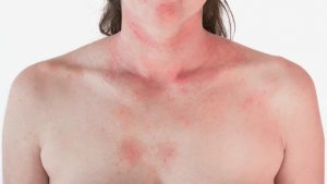 caucasian woman's chest with pink hives all over it