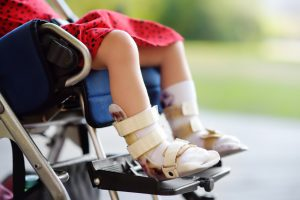 little girls legs in a wheelchair with wraps around her ankles and feet.