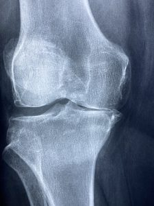 x-ray picture of a knee bone/joiny