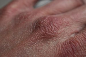dry skin on the back of a caucasian hand's knuckles