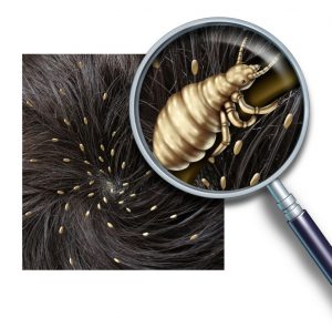 picture of head with lice on it and a magnifying glass over one